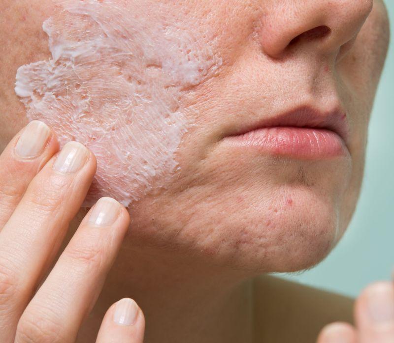 cicatrici acnee famisoo