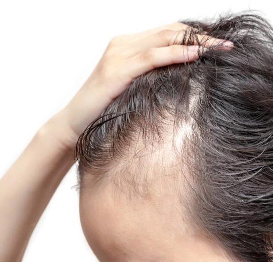 tratament scalp